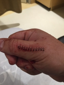 12 stitches on the outside and 3 more in the muscle.
